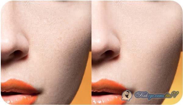 Как сделать ретушь проблемной кожи?